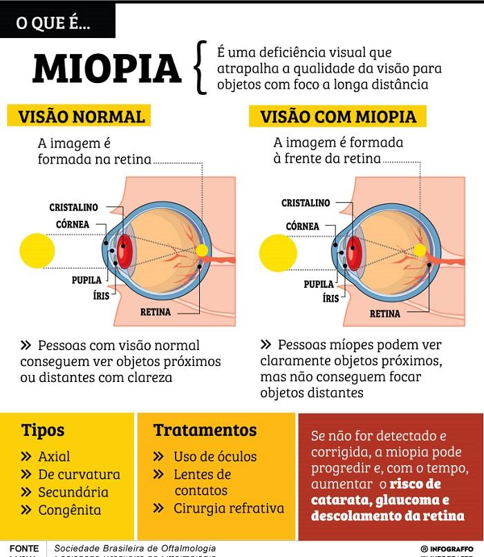 fbfd03714 Diagnosticado com miopia ainda quando era criança, o estudante Victor Melo  relata que passou vários anos sem se consultar e sem fazer o uso de óculos,  ...