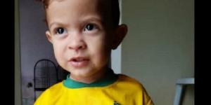 Criança de 2 anos tem rosto desfigurado após ataque de cão e família faz campanha