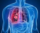 Câncer de pulmão é o que mais mata no Brasil e no mundo