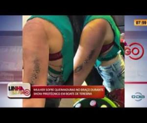 TV O Dia - LINHA DE FOGO 20 01 2020 MULHER SOFRE QUEIMADURAS DURANTE SHOW PIROTÉCNICO EM BOATE DE TERESINA