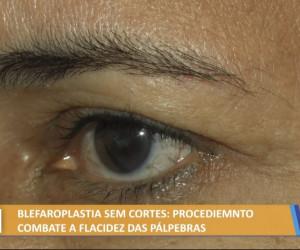 TV O Dia - Blefaroplastia sem cortes, procedimento que combate a flacidez das pálpebras 03 08 2021